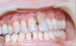 Симптомы рака десны (зуба): первые признаки начальной стадии с фото, принципы лечения опухоли