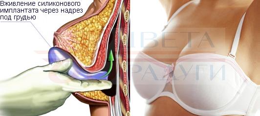 Кому необходима повторная операция маммопластика, как проходит