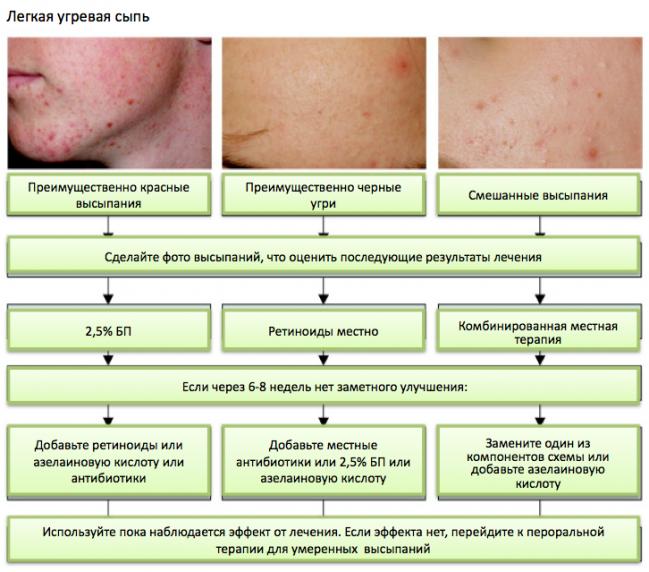 Гормональная сыпь у новорожденных на лице
