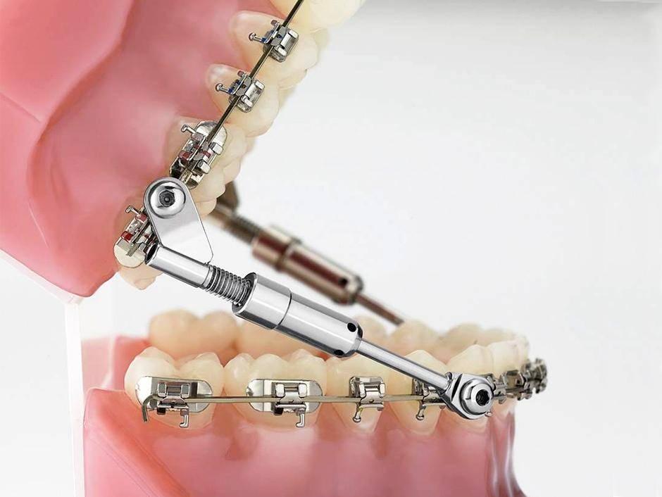 Методики использования эндодонтического инструментария