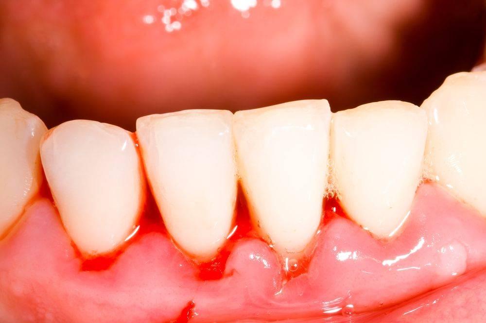 Болит зуб под коронкой? что делать? как исправить врачебные погрешности и ошибки владельцев?