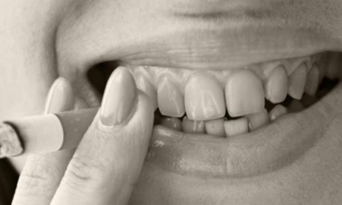 Как выглядят зубы курильщика? каковы последствия пагубной привычки?