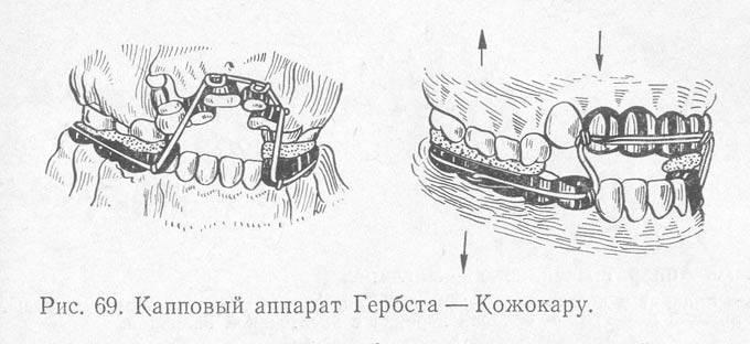 Аппарат гербста (herbst) для коррекции прикуса: конструкция, фото пациентов до и после, цена лечения