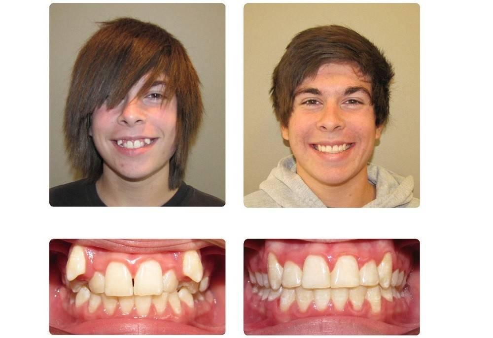 Можно ли выровнять зубы коронками