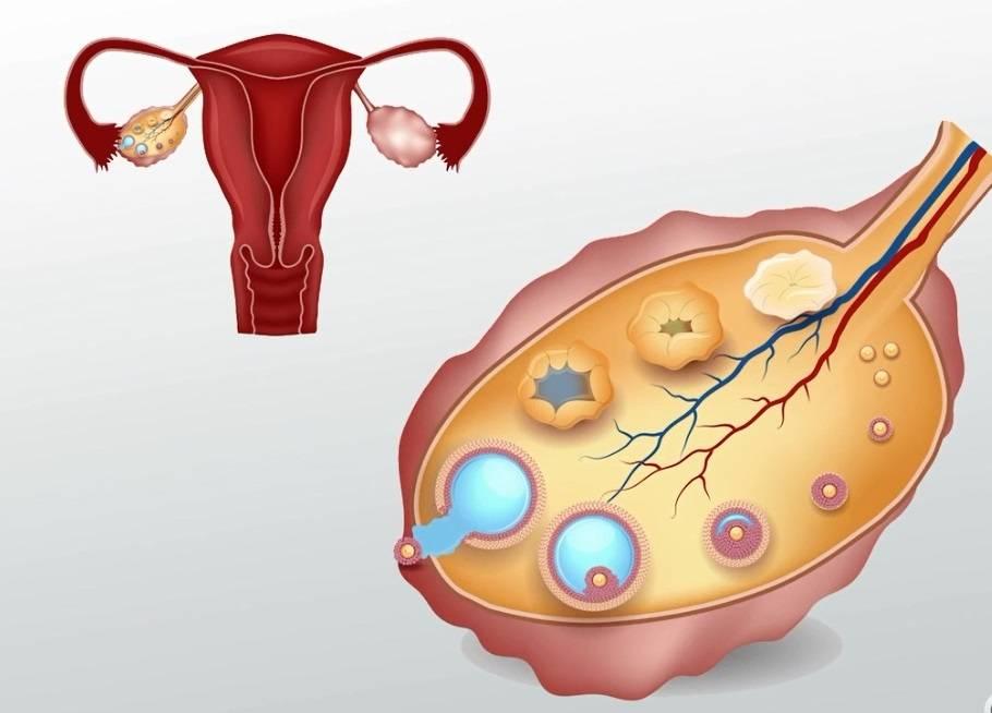 Возможно ли повысить овариальный резерв яичников