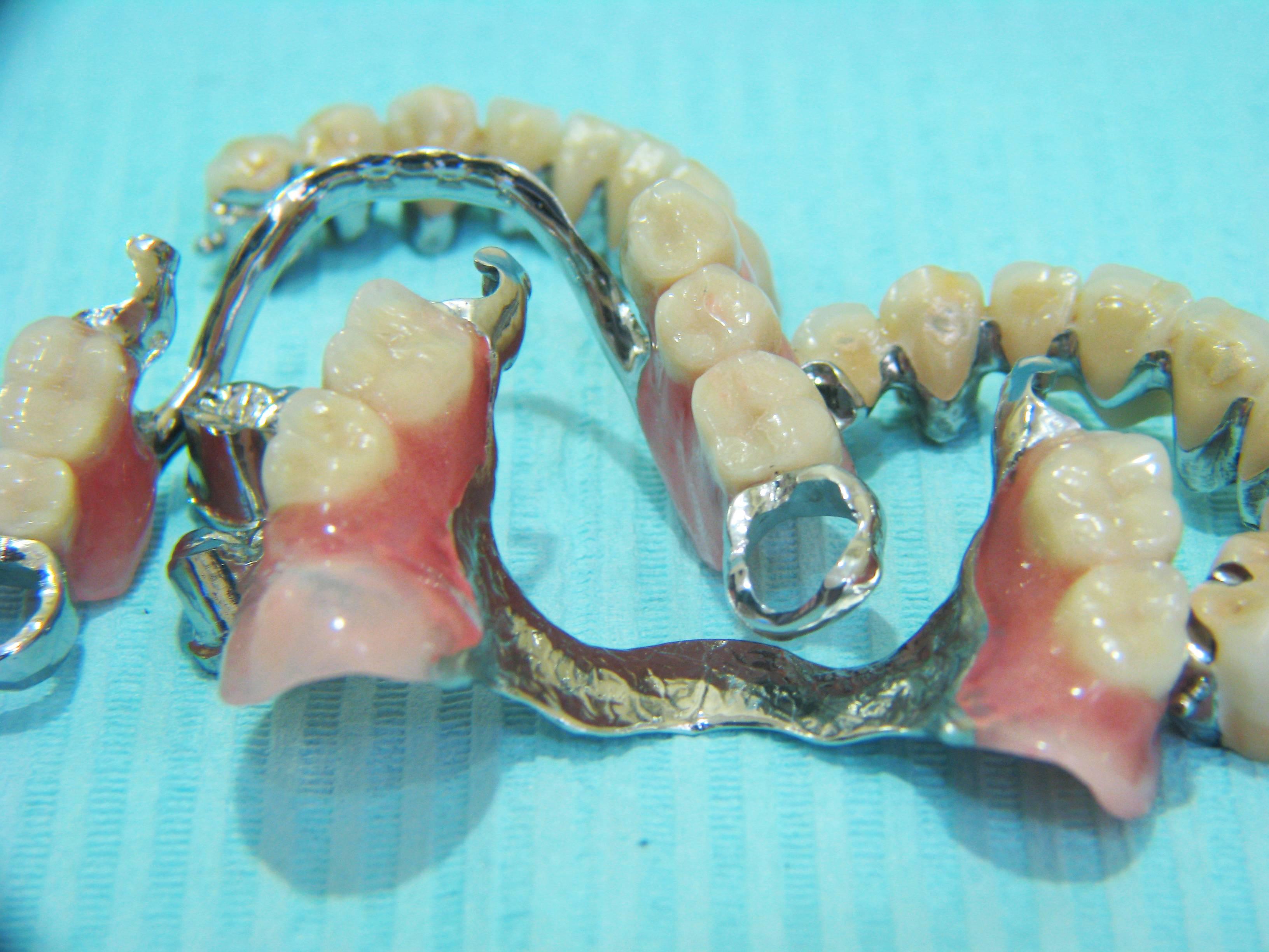 Зубные бюгельные протезы: отзывы, цена