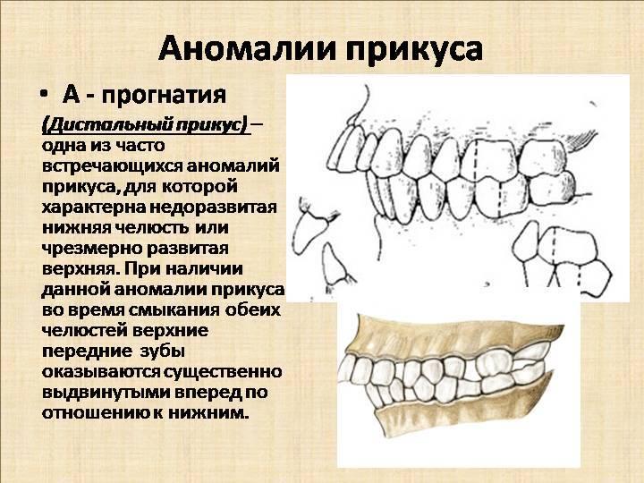 Виды аномалий развития челюстей человека