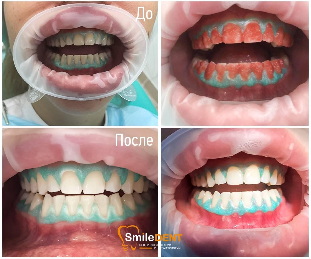 Способы отбеливания зубов с помощью системы opalescence буст — инструкция для проведения домашних процедур
