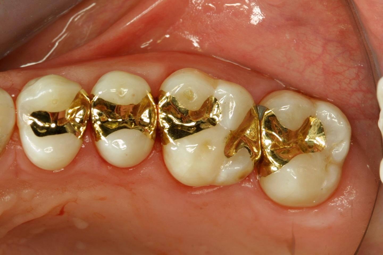 Зубные вкладки вместо пломб