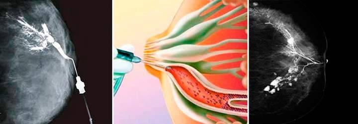 Пункция молочной железы: проколоть, извлечь, исследовать – в чем же плюсы метода?