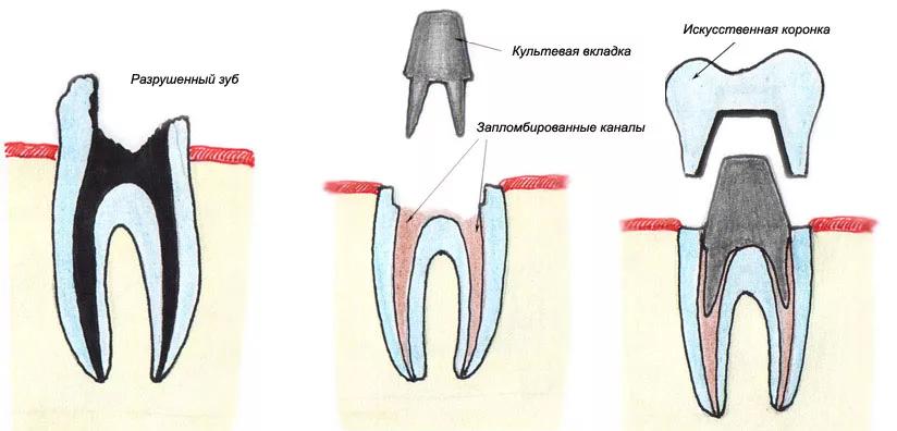 Что делать если сломался зуб под корень