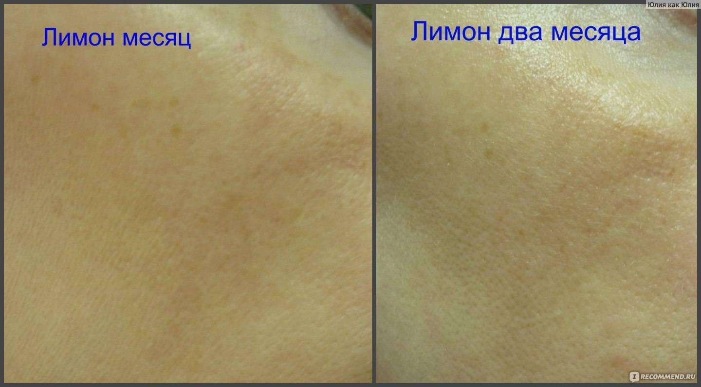 Масло лимона для волос и кожи лица, применение в косметологии