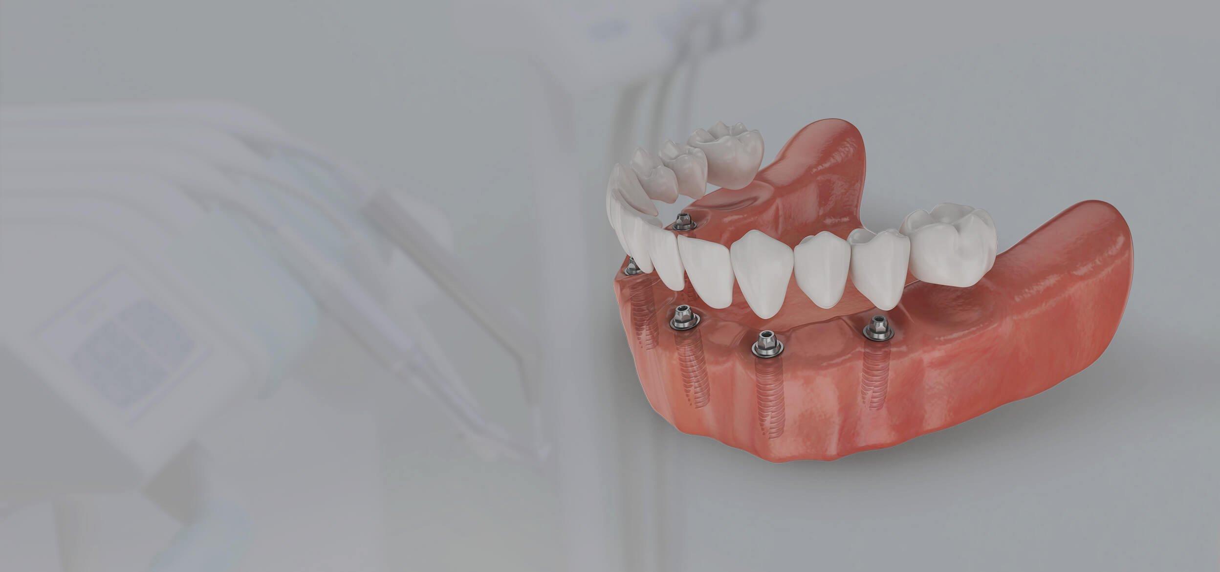 Есть ли гарантия на съемные зубной протезы