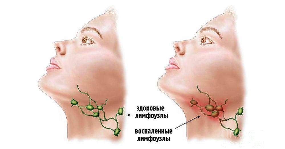 Воспаление лимфоузлов возле ушей