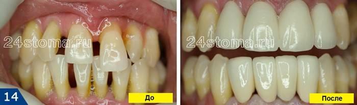 Особенности и этапы проведение протезирования зубов при пародонтозе