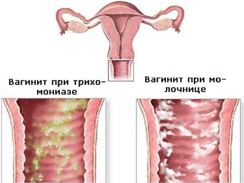 Зуд и жжение во влагалище: причины и лечение