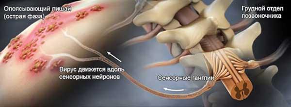 распространение герпеса в организме