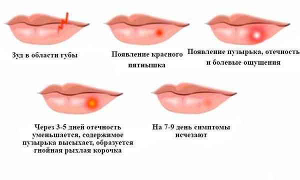 Субфебрильная температура при герпесе 3