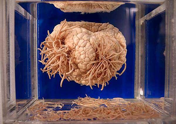 глисты в мозге