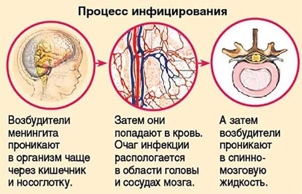 заражение менингитом