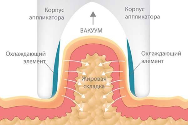 механизм криолиполиза