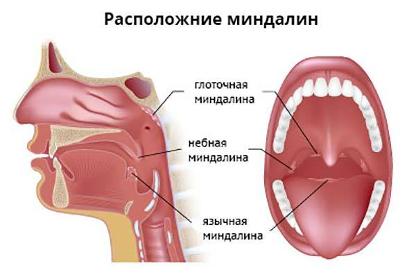 миндалины горла