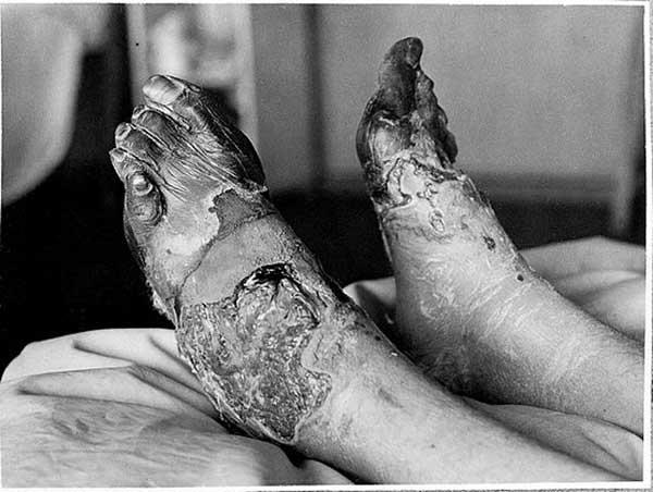 Некроз после обморожения ног