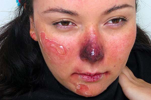 обморожение носа