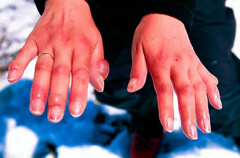 Руки после сильного переохлаждения