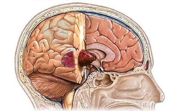 опухоль в мозге человека