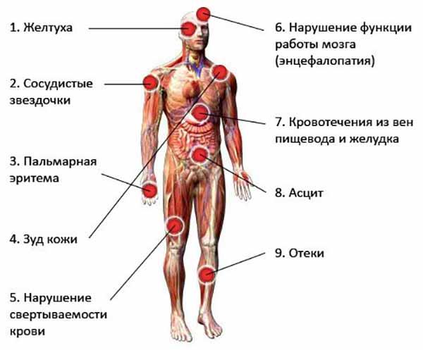 признаки цирроза