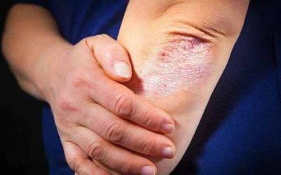 Температура при воспалении суставов движения в плечевых суставах