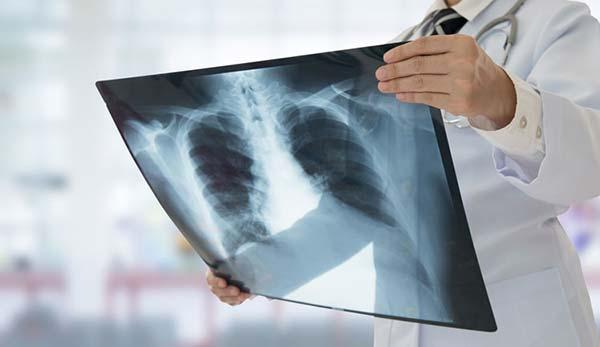 рентген-диагностика