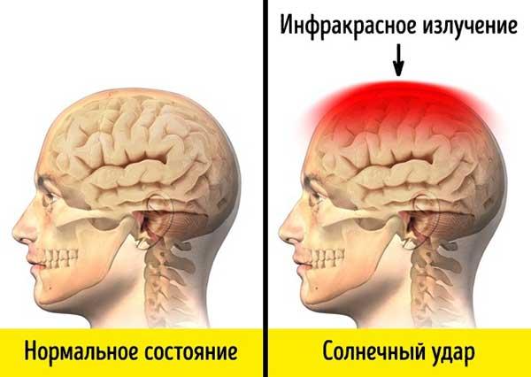 влияние солнца на мозг