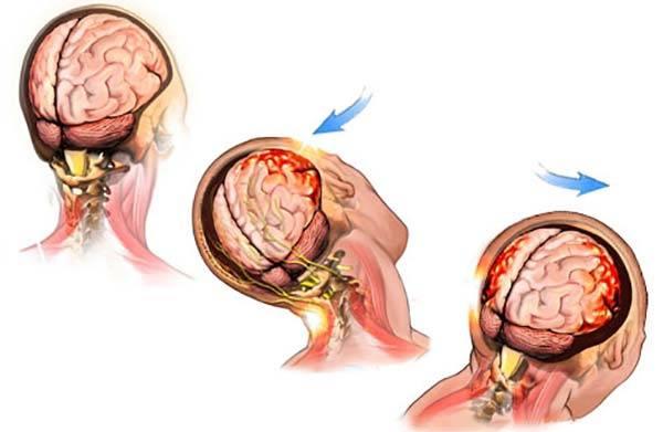 сотрясение мозга человека