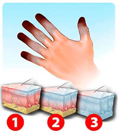 стадии обморожения кожи